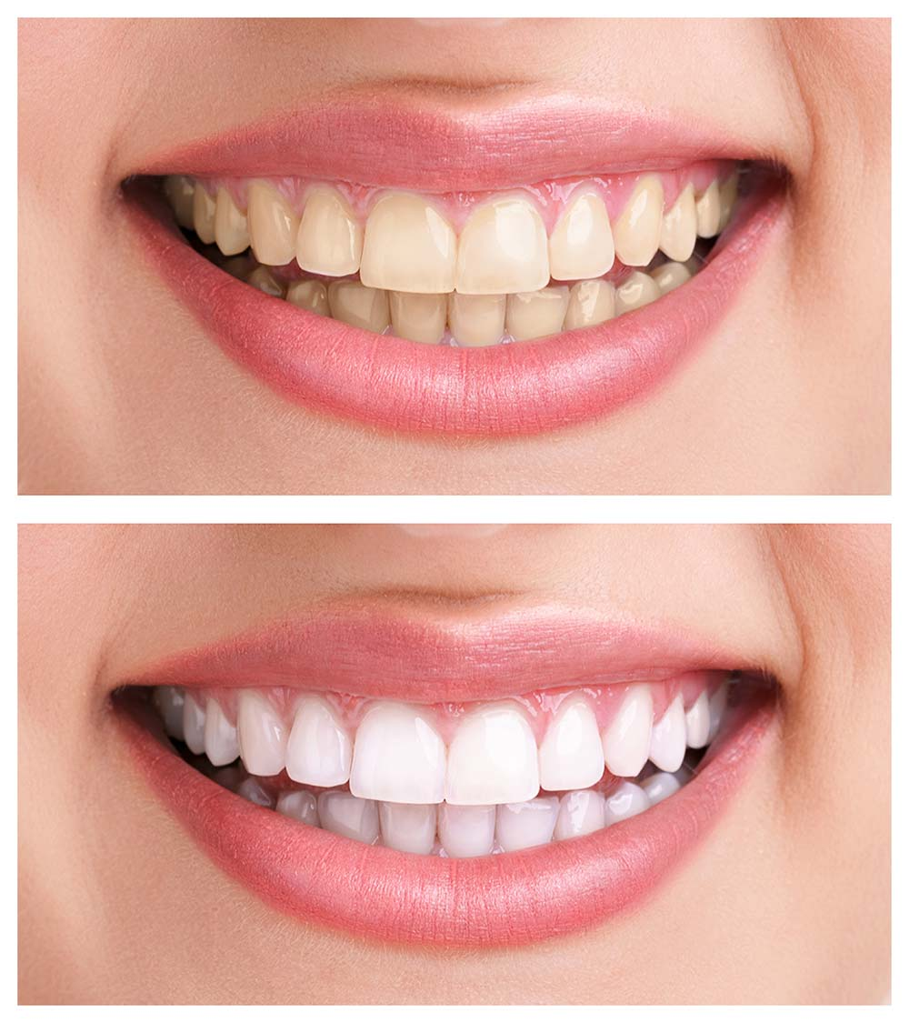 Laser Teeth Whitening Central Pattaya Dental Center