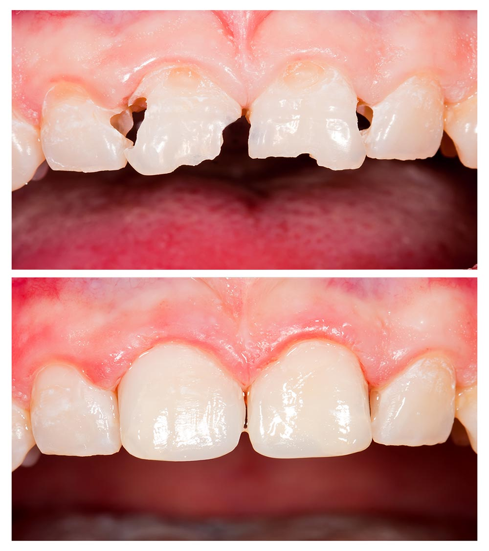 This Type Of Filling Is Ideal For Teeth That Are Visible When A Patient Smiles Because The Resin Material Matches Color Natural